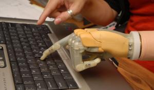 bionikus kéz