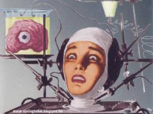 fej transzplantáció-