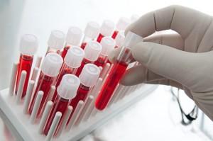 laboratorium_ver-teszt