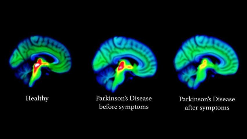 Megtört a jég a Parkinson-kór elleni harcban